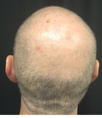 Hair Loss Before & After Before