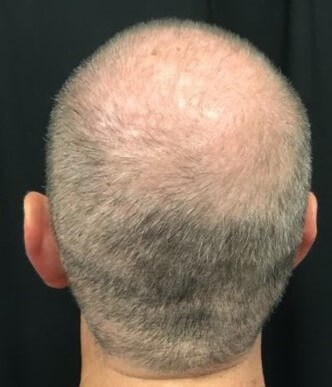 Hair Loss Before & After After 6 months