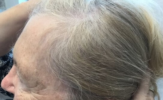 Hair Loss After 4 months