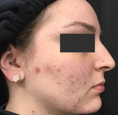Acne Treatment Before & After Before