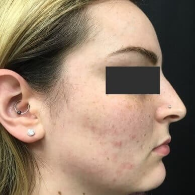Acne Treatment Before & After After 3 months