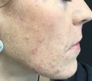 Hormonal Acne Before