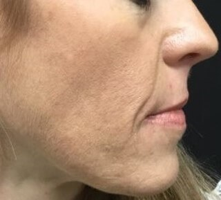 Hormonal Acne After 5 months
