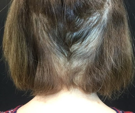 Alopecia Areata Before & After After 4 months